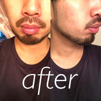 髭トリミング アフター